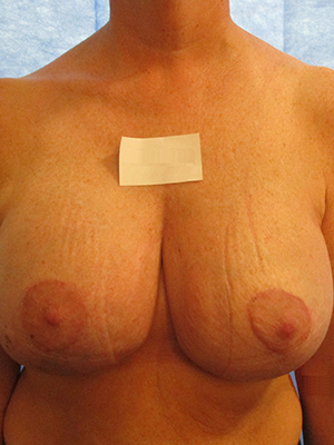 Mr Hardy - After Breast Augmentation & Mastopexy