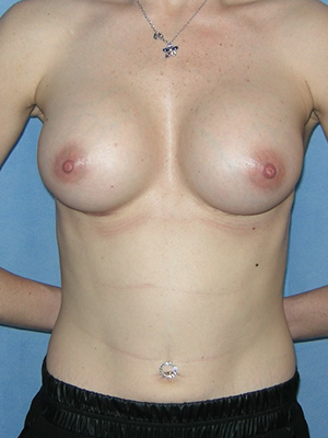 Mr Degado - After Submuscular Breast Implants