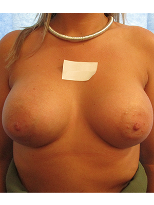 Mr Hardy - After Submuscular Breast Augmentation