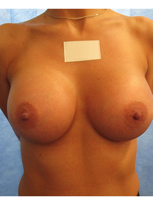 Mr Hardy - After Submuscular Breast Implants