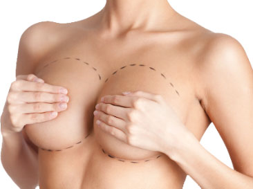 Over and under breast implant