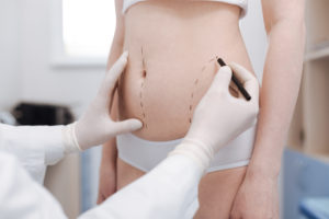 new year new you liposuction